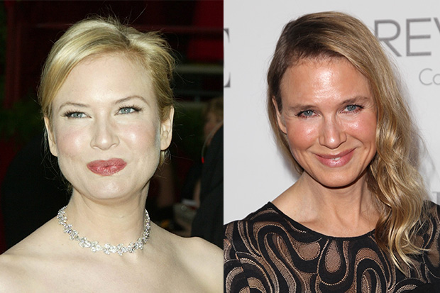 Renée Zellweger's Amazing Face Transformation